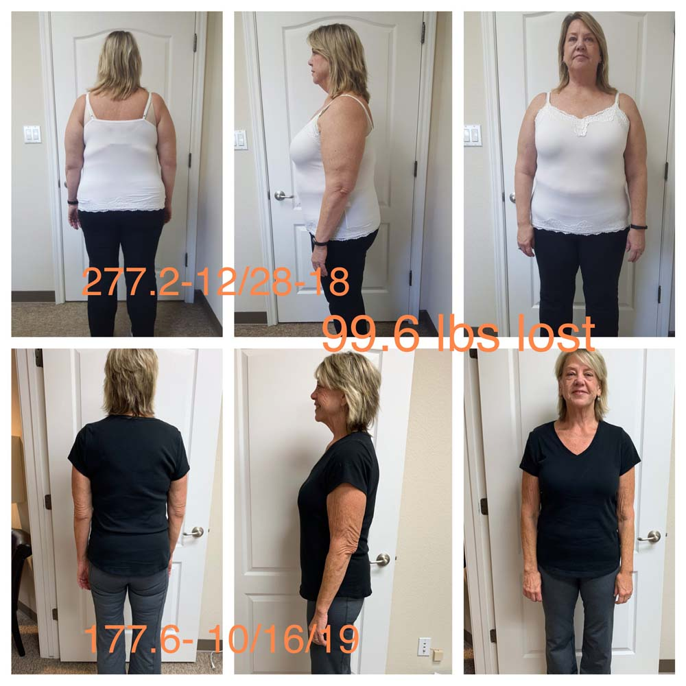 texas weight loss clinic temple tx